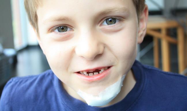 tand en kin